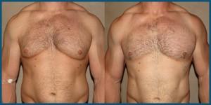 gynecomastia-steroids-bodybuilder